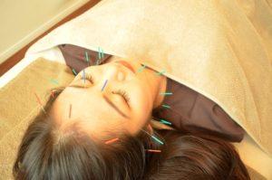 美容鍼 美顔鍼 美容針